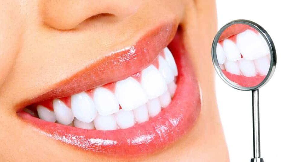 traumatismele dento-alveolare