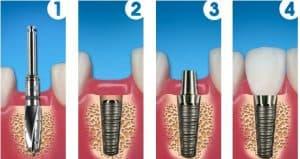 beneficile-implantului-dentar