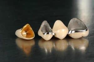 coroane-metalo-ceramice