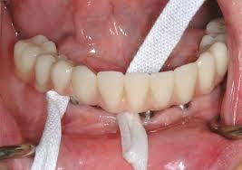 implanto 4