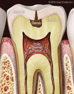 C:\Users\User\Desktop\Cristi poze stoma\tooth-decay-1-239x300.jpg