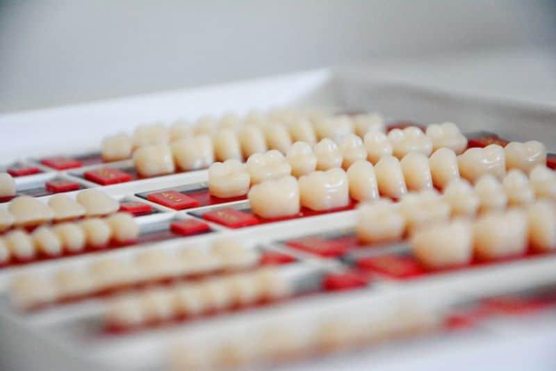 imobilizarea dintilor parodontotici